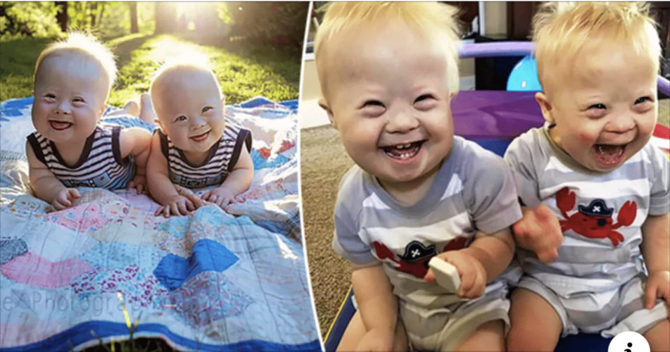 Beautiful Twins, Born With Down's, Light Up Hearts Across The Globe