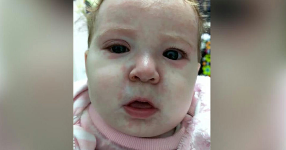 """""""This baby got measles because of anti-vaxers"""""""