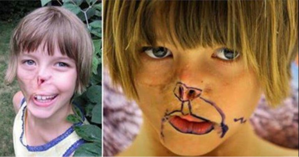 11-year-old girl who had her face bitten off by a raccoon is given a replacement nose and ear