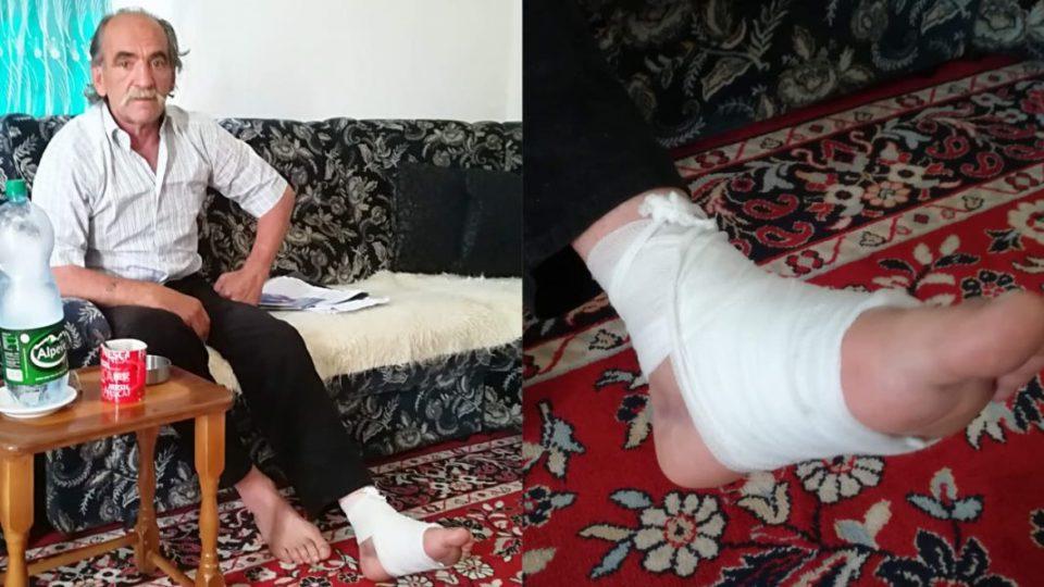 E aksidentojnë duke ecur, invalidit të Luftës i kërkohet që edhe frakturat (gipsin) për kurimin e lëndimeve trupore t'i blejë vetë!