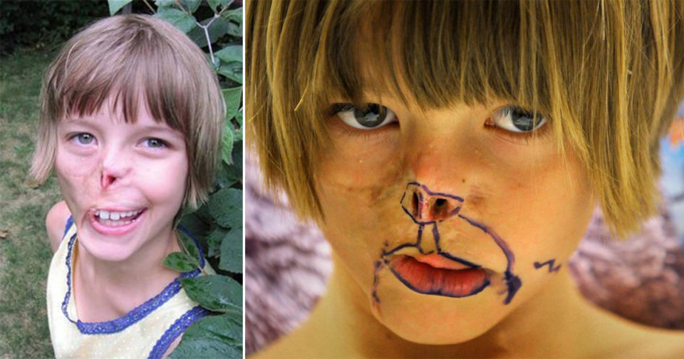 Little girl who had her face bitten off by a raccoon is given a replacement nose and ear – please pray for her