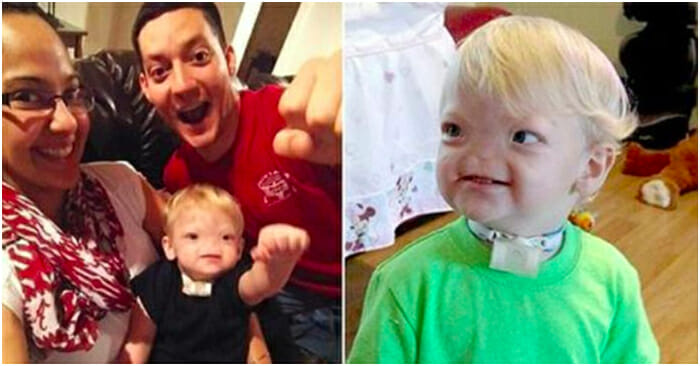 'Miracle baby' born without a nose dies at age two – please pray for his family ❤️