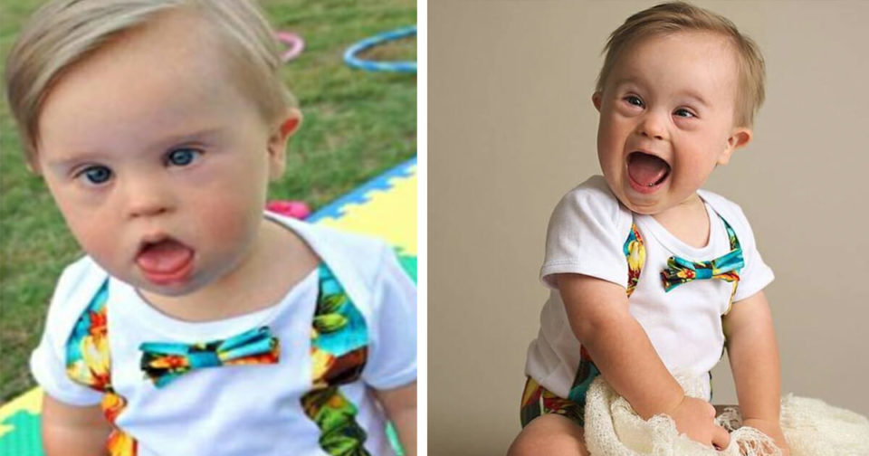 Baby who was rejected by modelling agency for having Down syndrome becomes popular, lands ad campaign