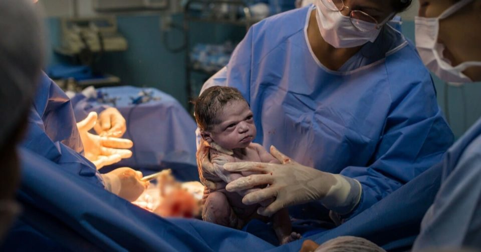 Unimpressed newborn stares down doctor, photo goes viral