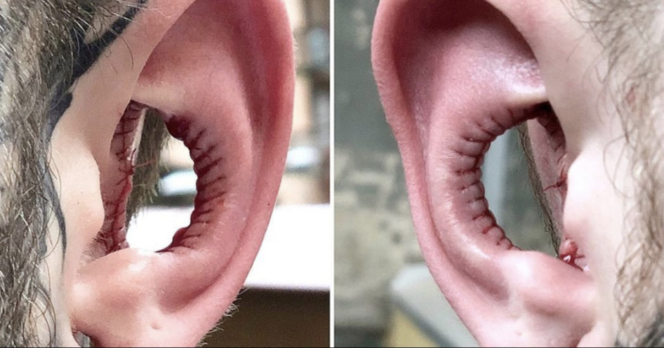 """The new """"Beauty trend"""" for 2020 – removing the inside of your ears"""