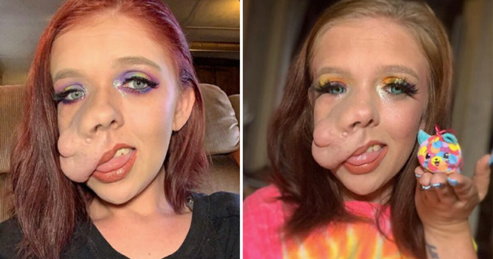 27-year-old woman with facial tumor embraces her differences and becomes successful makeup artist