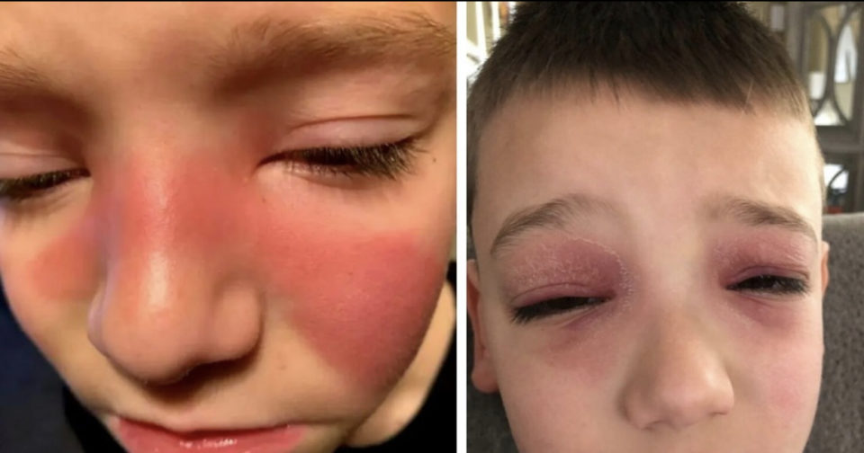 Watch for red marks on your kids – could be a sign of strep throat affecting sinuses