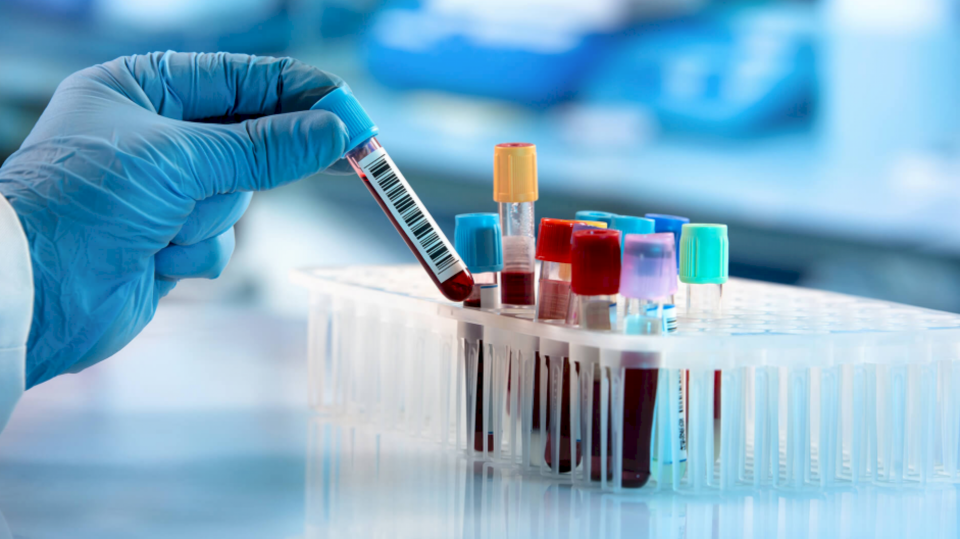 Cilat janë procedurat deri te testi PCR?